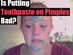 Toothpaste on Pimples