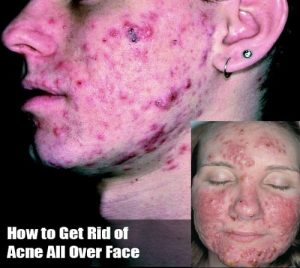 Acne All Over Face