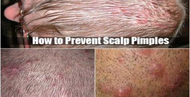 Scalp Pimples