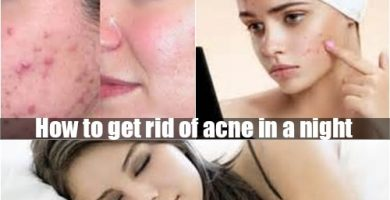 How to get rid of acne in a night