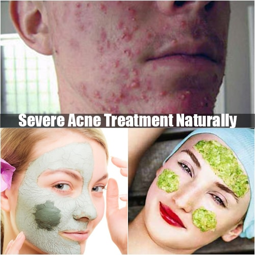 Severe acne treatment naturally