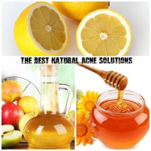Best Natural Acne Solutions