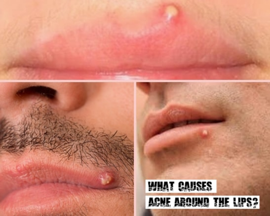 Acne Around the Lips
