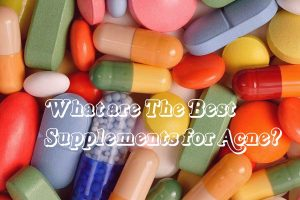 Supplements for Acne