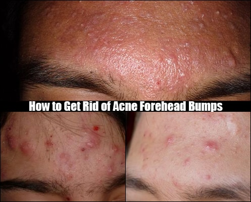 acne forehead bumps