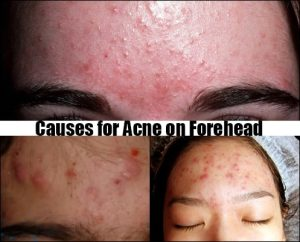 Causes for Acne on Forehead