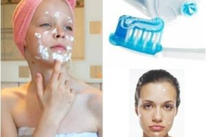 putting toothpaste on acne