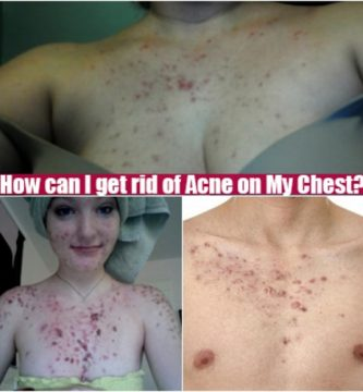 Acne on My Chest