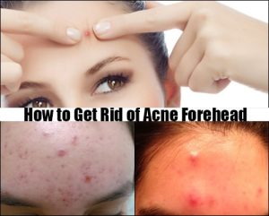 how to stop forehead acne