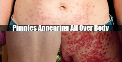 pimples appearing all over body