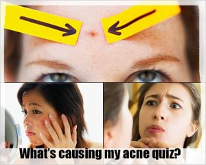 acne quiz