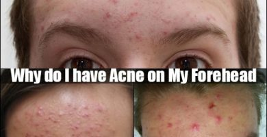 acne on my forehead