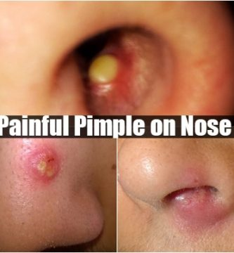 painful pimple on nose