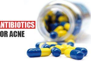 Antibiotics for Acne