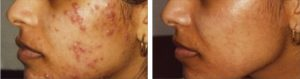 acne extraction