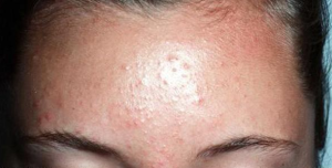 how to get rid of fungal acne on forehead